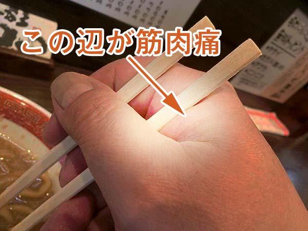 箸を持った手元のアップ。親指と人差し指の付け根のところを指して、この辺が筋肉痛と書いてあります